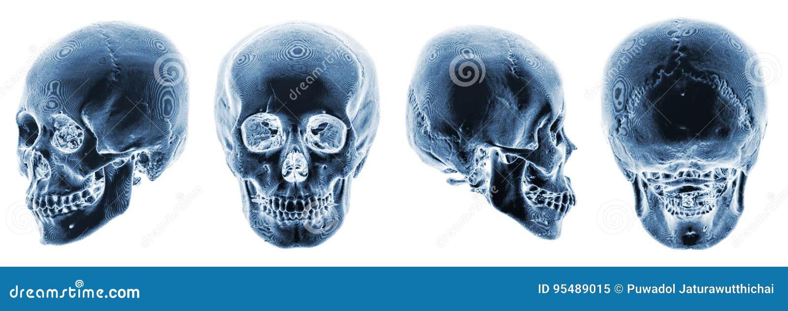 Exploración De 3D CT Del Cráneo Humano Visión Múltiple Estilo ...