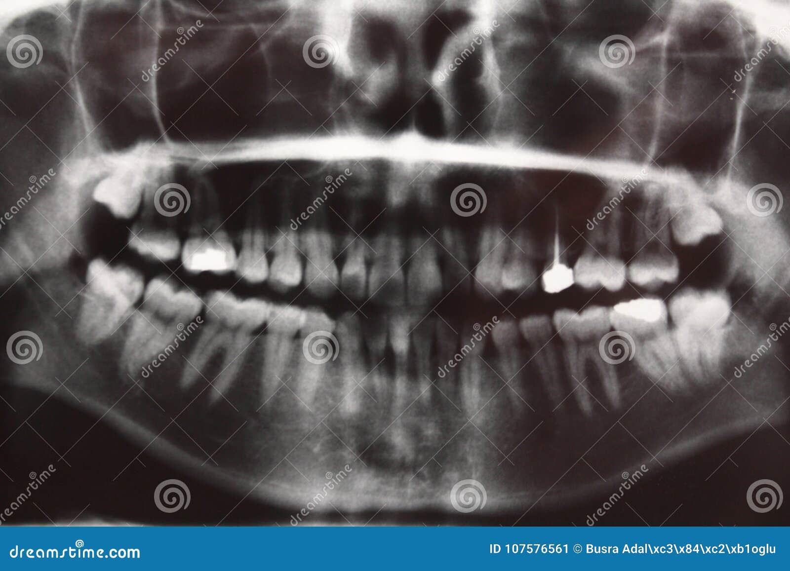 Exploración De La Anatomía Del Dentista De Los Dientes De La ...