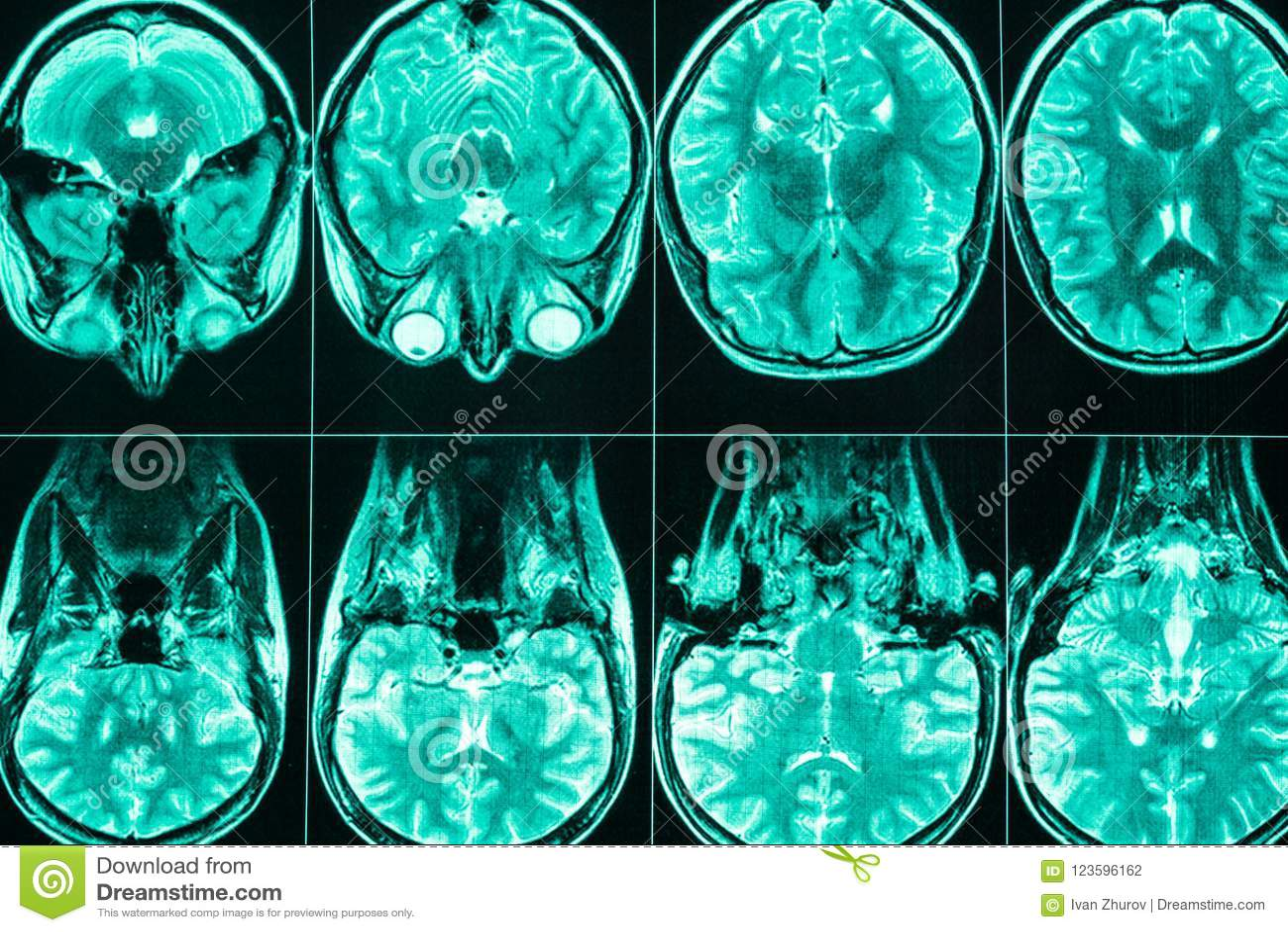 Exploración De MRI De La Cabeza Y Del Cerebro De Una Persona Foto de ...