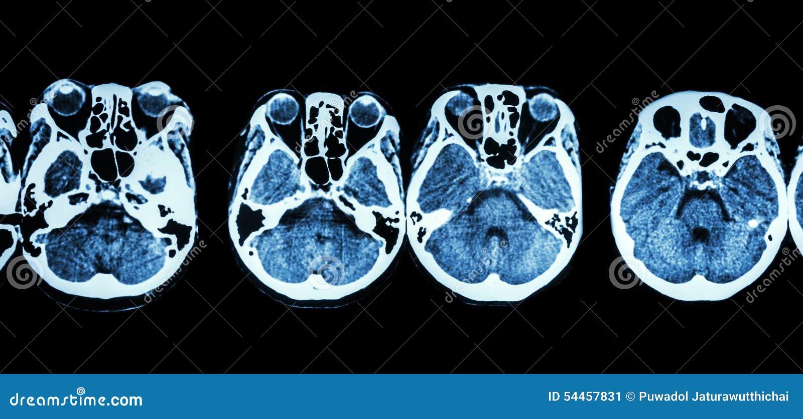 Exploración Del CT Del Cerebro Y Base Del Cráneo (estructura De La ...