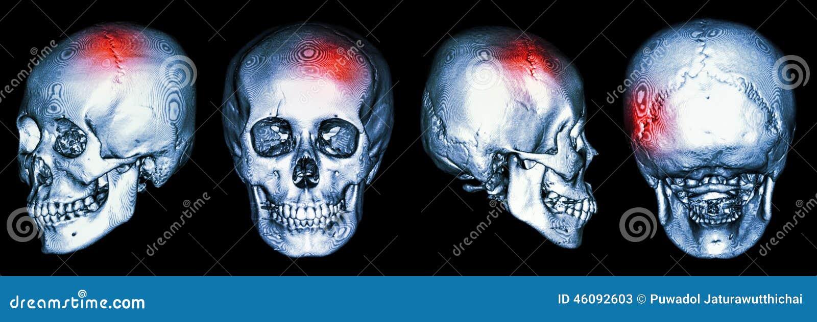 Exploración Del CT Del Cráneo Humano Y De 3D Con El Movimiento ...
