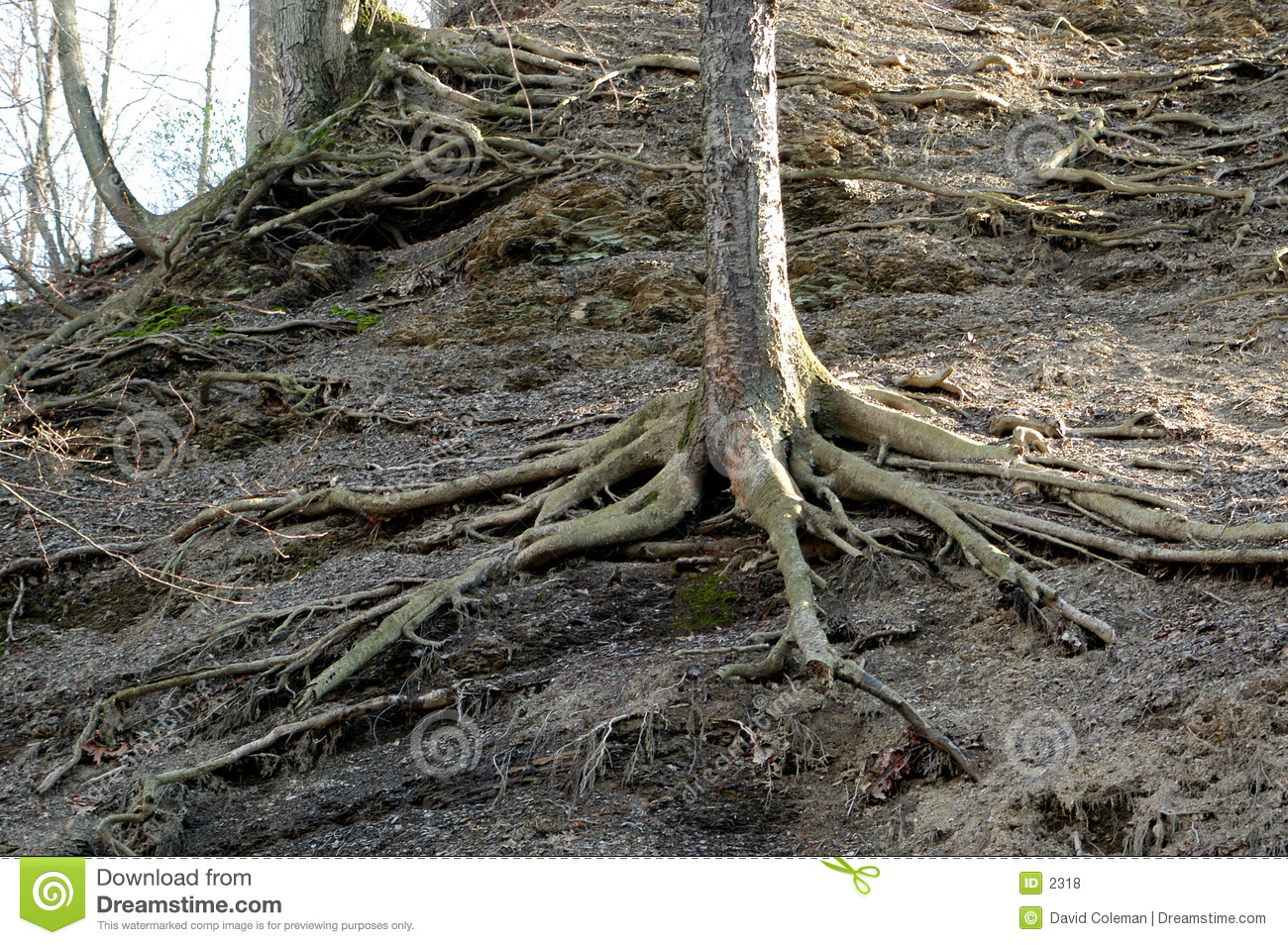 Exposed roots