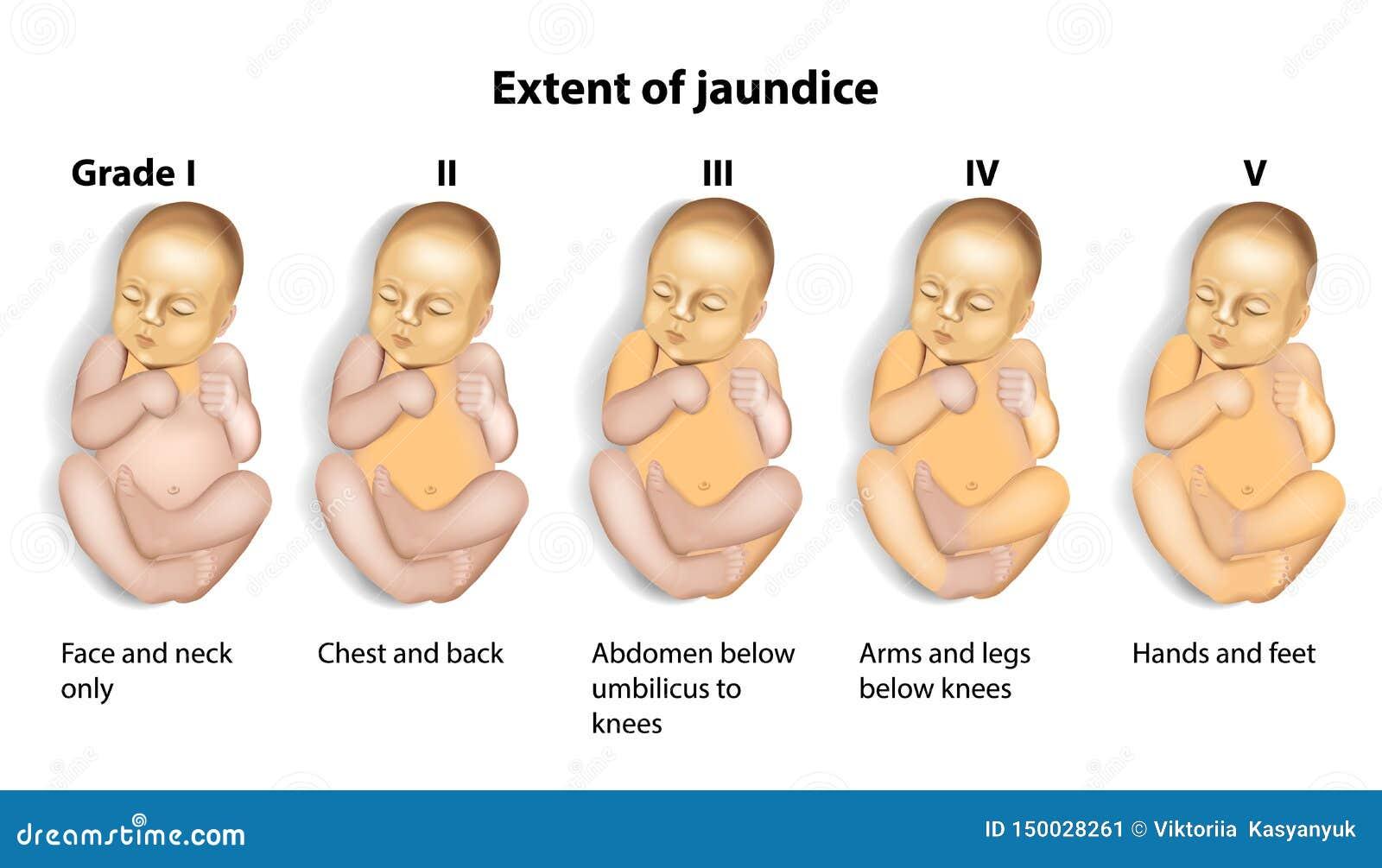 Extent Of Jaundice Icterus With Baby Stock Vector ...