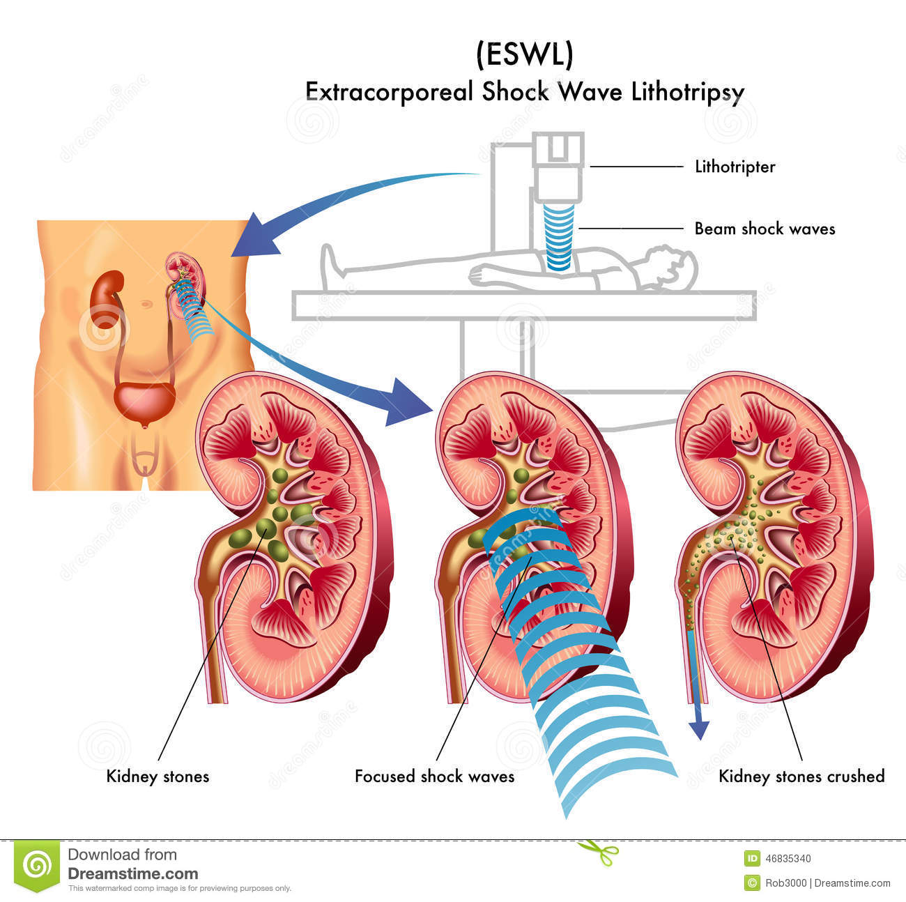Stock Photo Extracorporeal Shock Wave Lithotripsy Medical Illustration Treatment Kidney Stones Image46835340