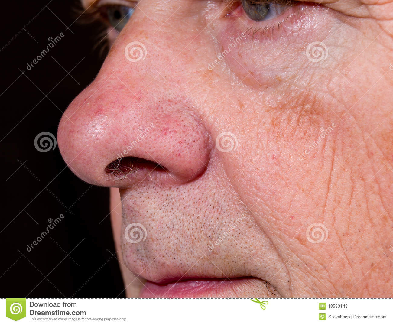 Extreme Close Up Of Senior Nose In Side View Stock Photo - Image of ...