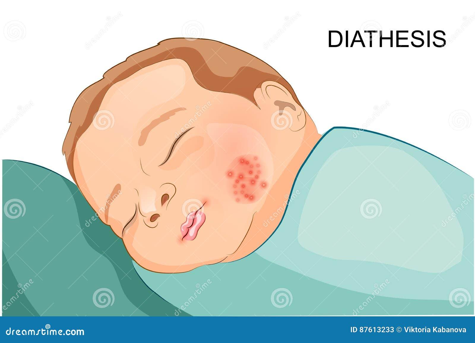 Bleeding diathesis