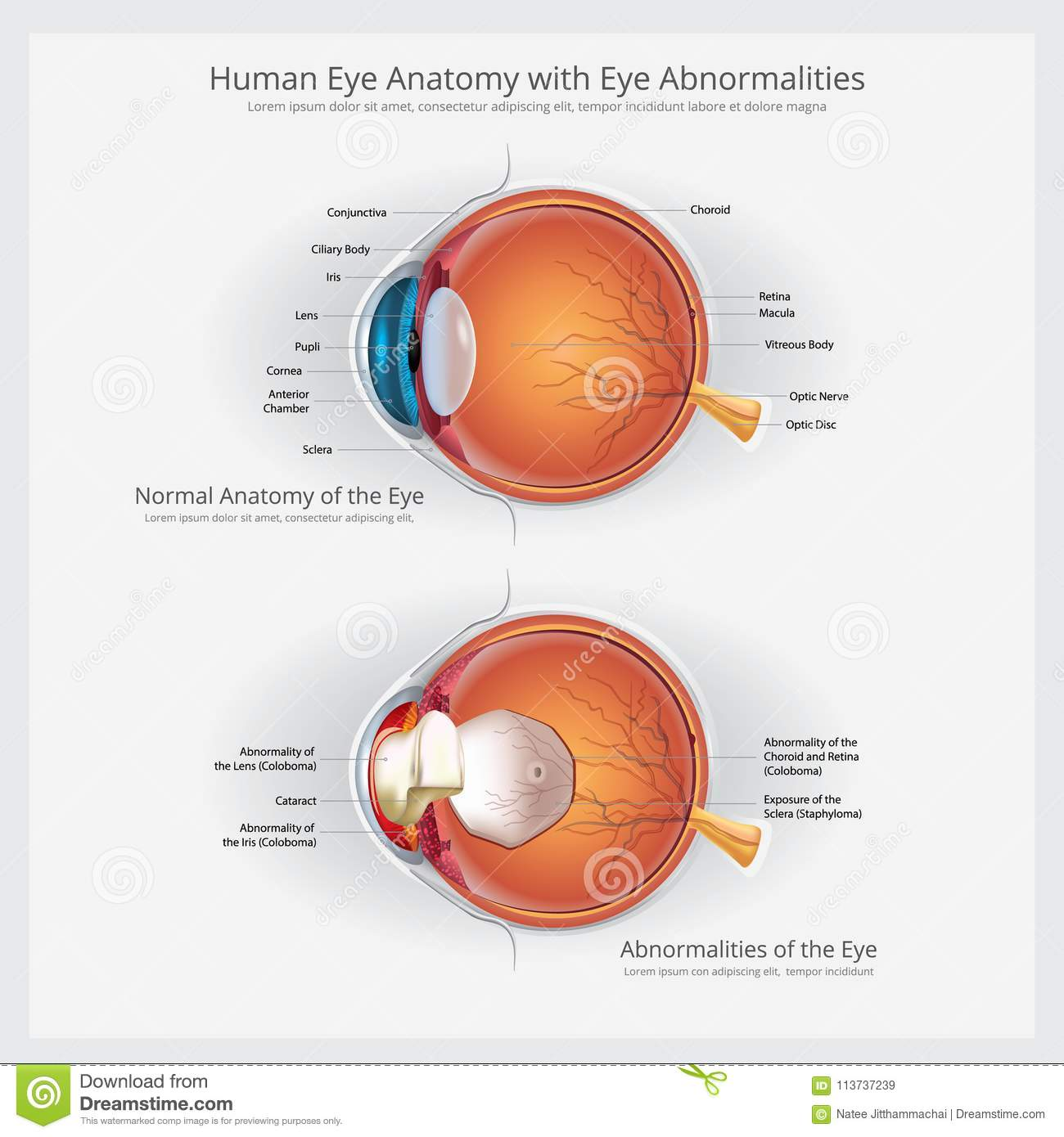 Eye Anatomy With Eye Abnormalities Stock Vector - Illustration of ...