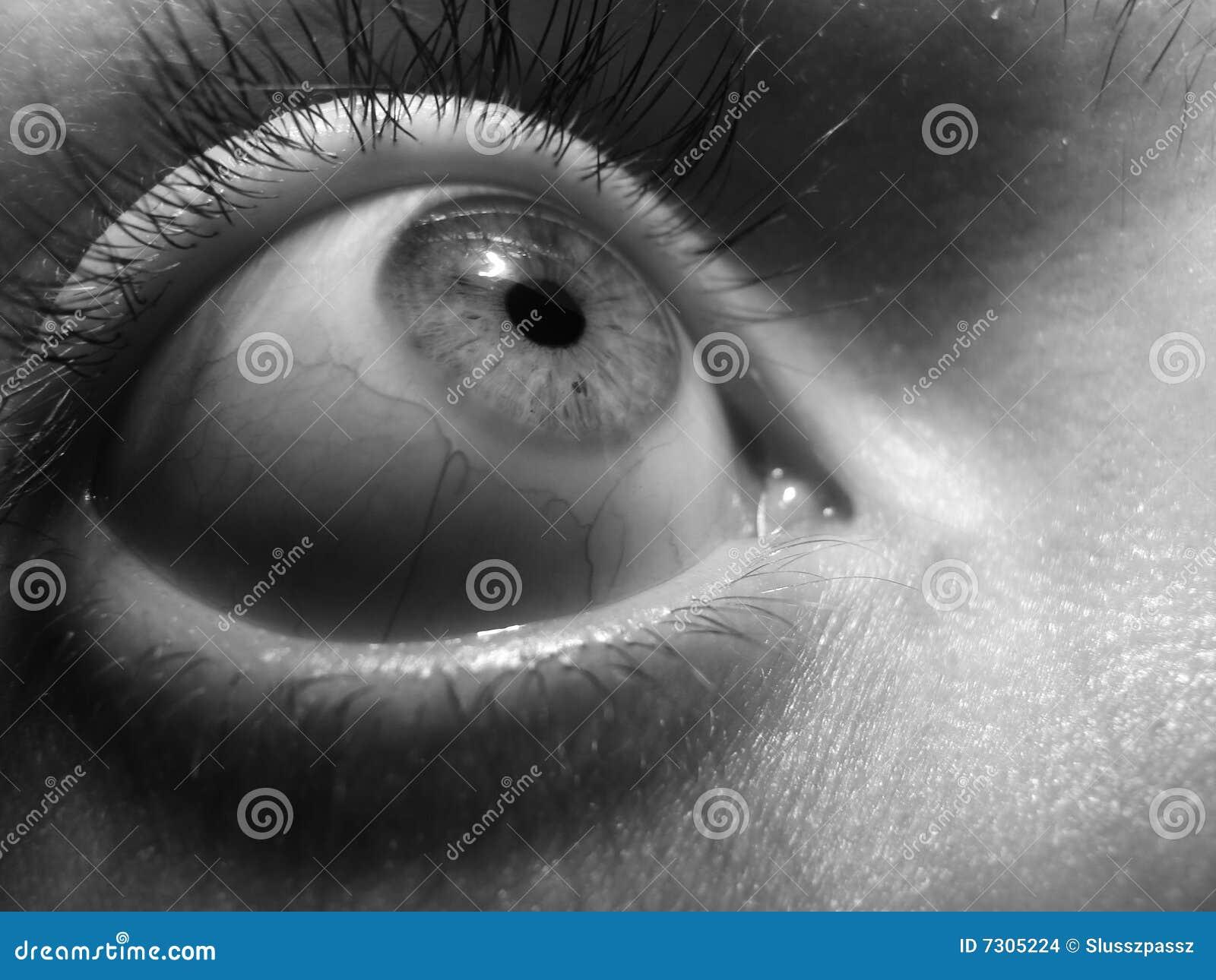 Eye fear