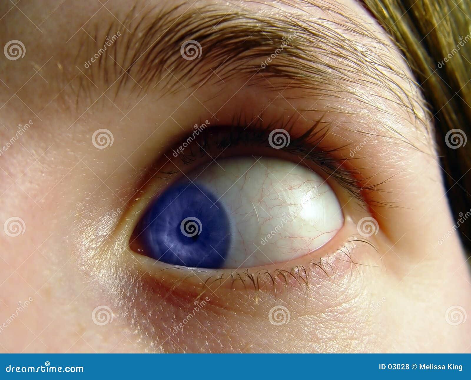 Eye girado dentro