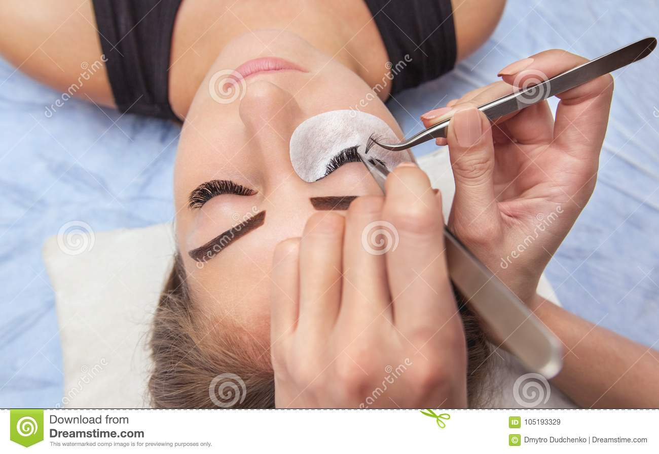 Eyelash removal procedure close up.