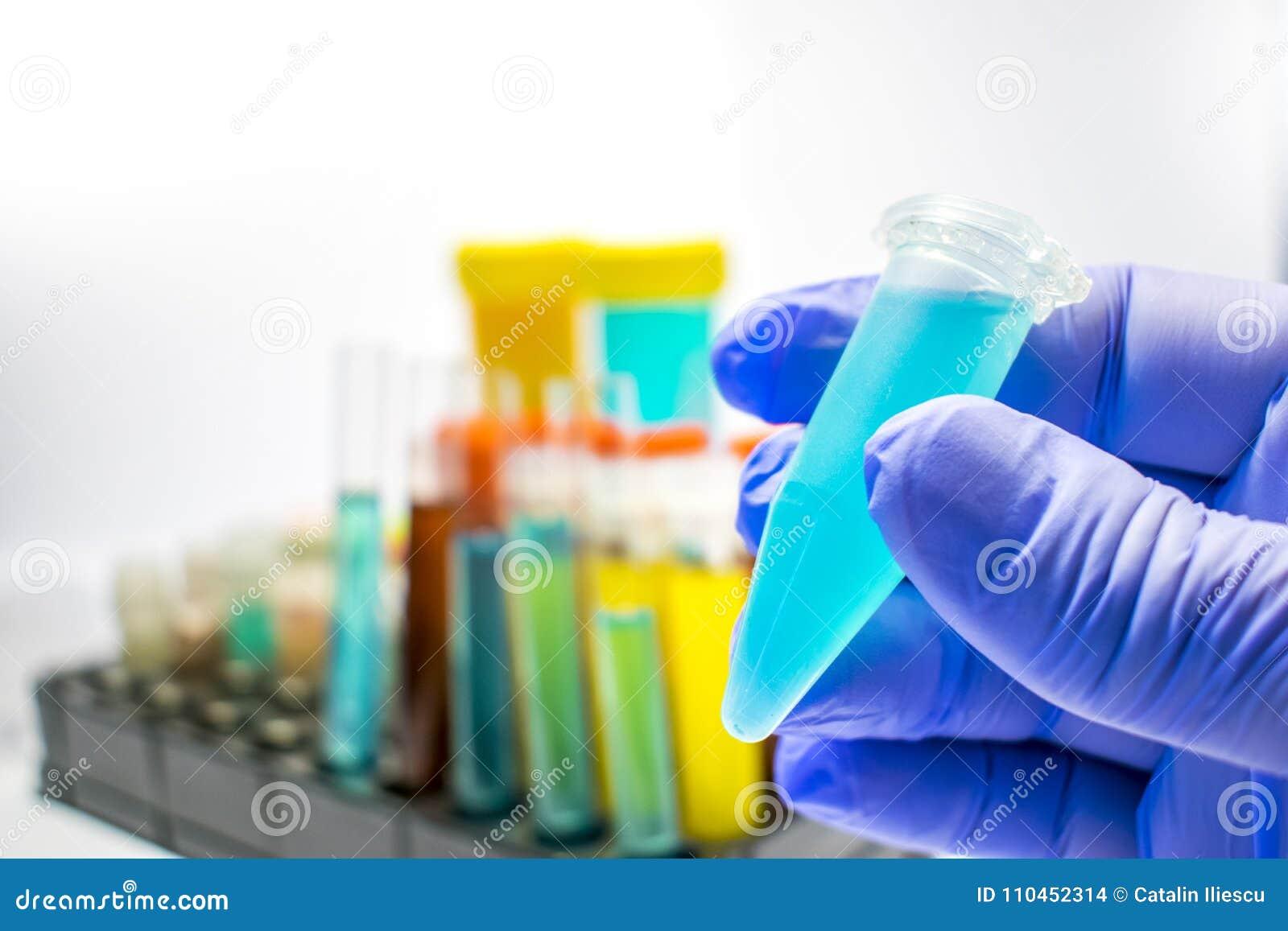 Färgrika laboratoriumprovrör, biokemiblodprov, urinprov, provrör, medicinsk analys, forskningbegrepp, fertilitet r