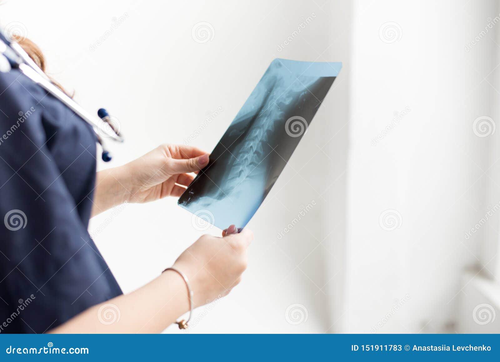 För bröstkorgröntgenstråle för doktor undersökande film av patienten på sjukhuset på vit bakgrund, kopieringsutrymme