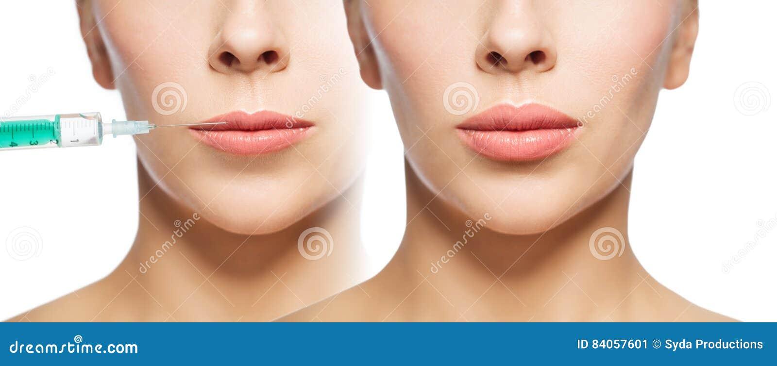 För kantutfyllnadsgods för kvinna före och efter injektion