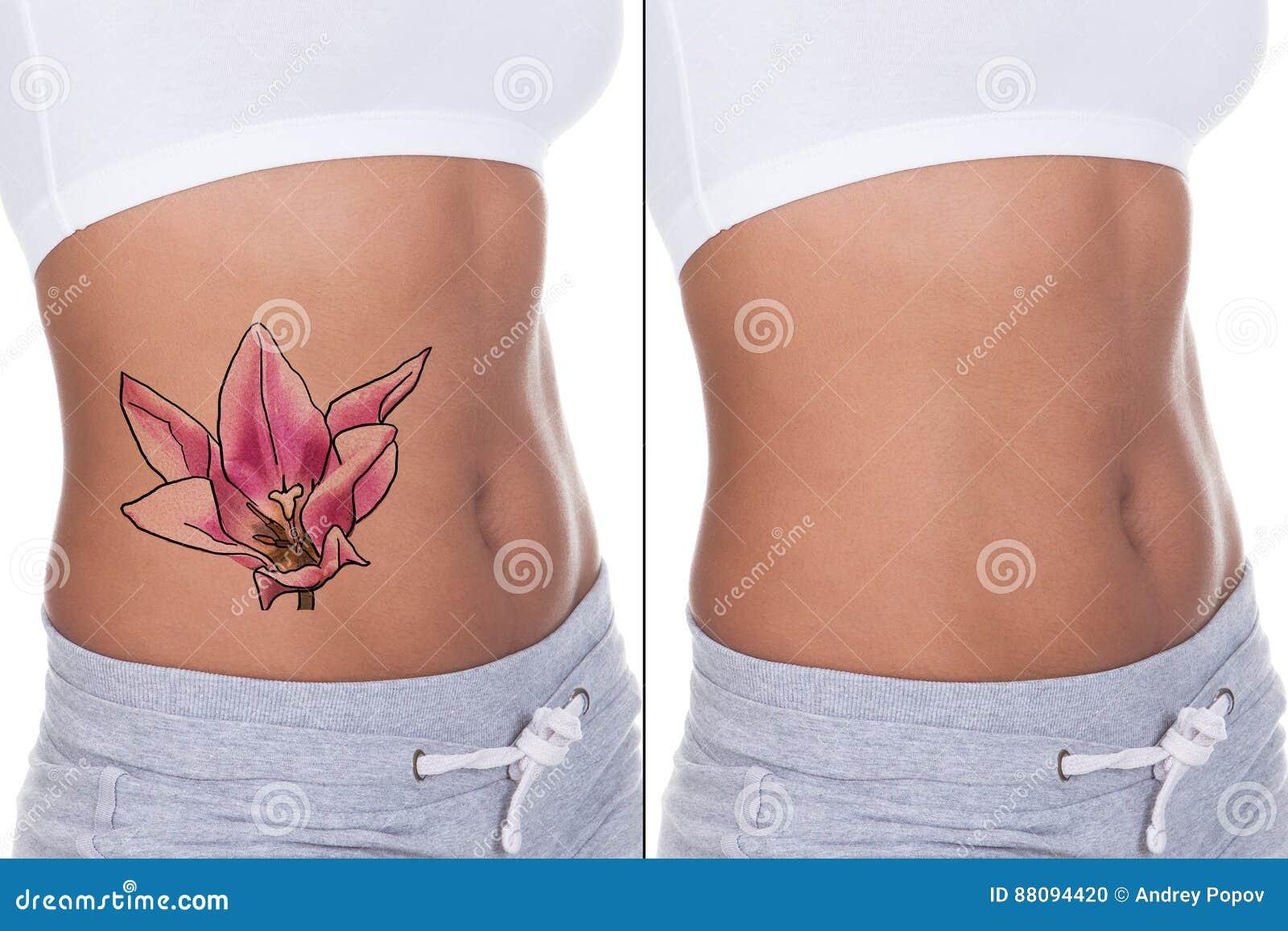 tatuering behandling