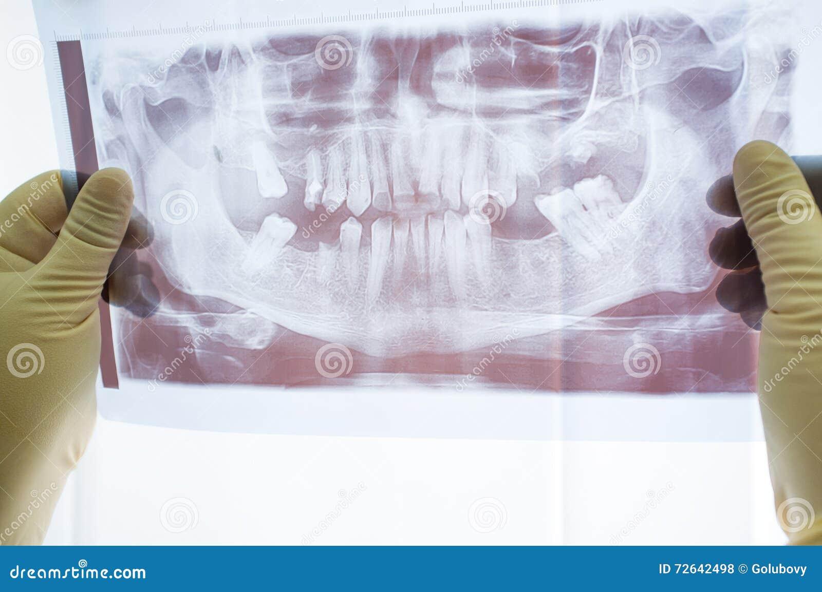 För tand- främre sikt röntgenstrålebildläsning för käke
