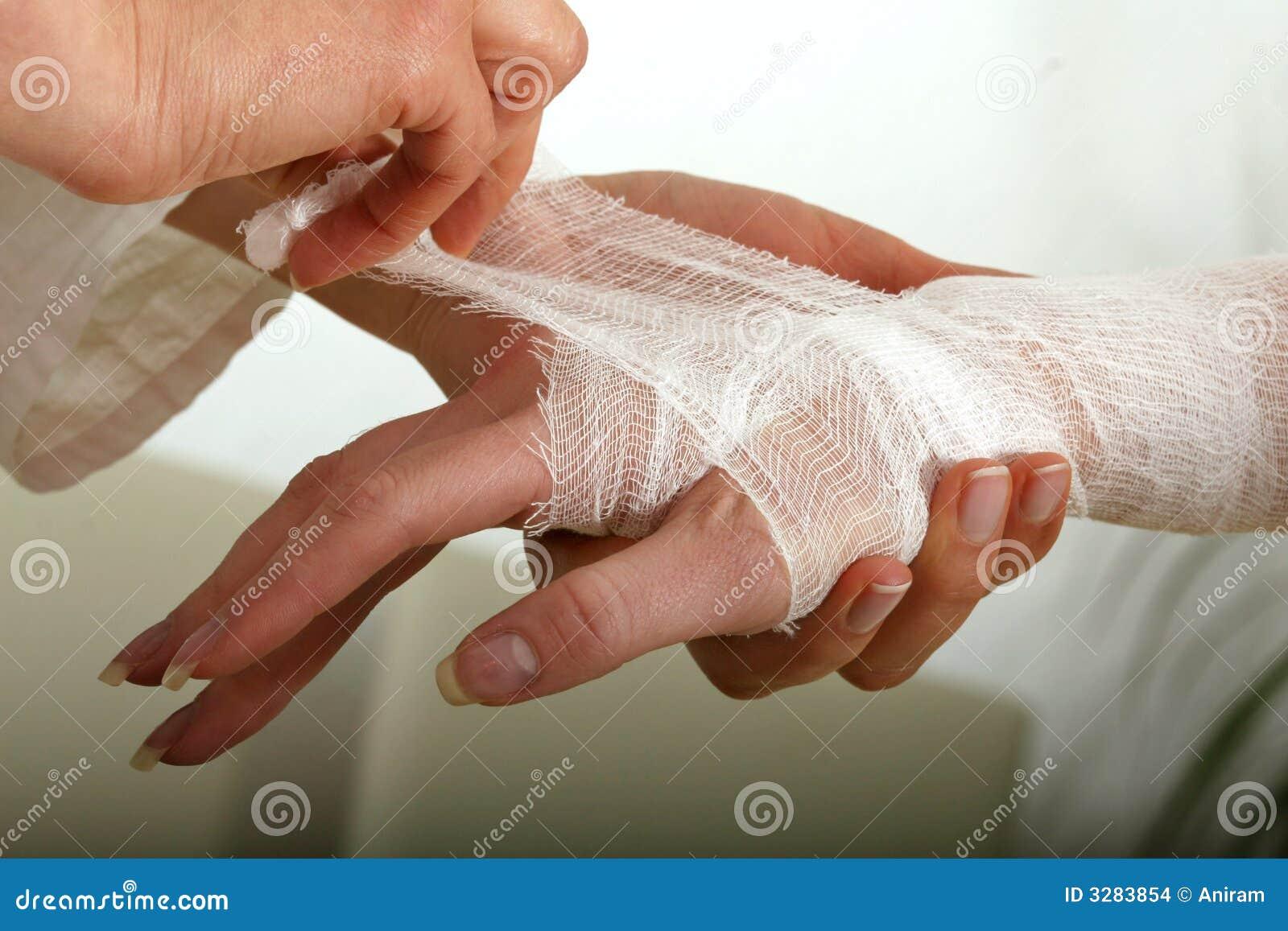 Förbinda handen