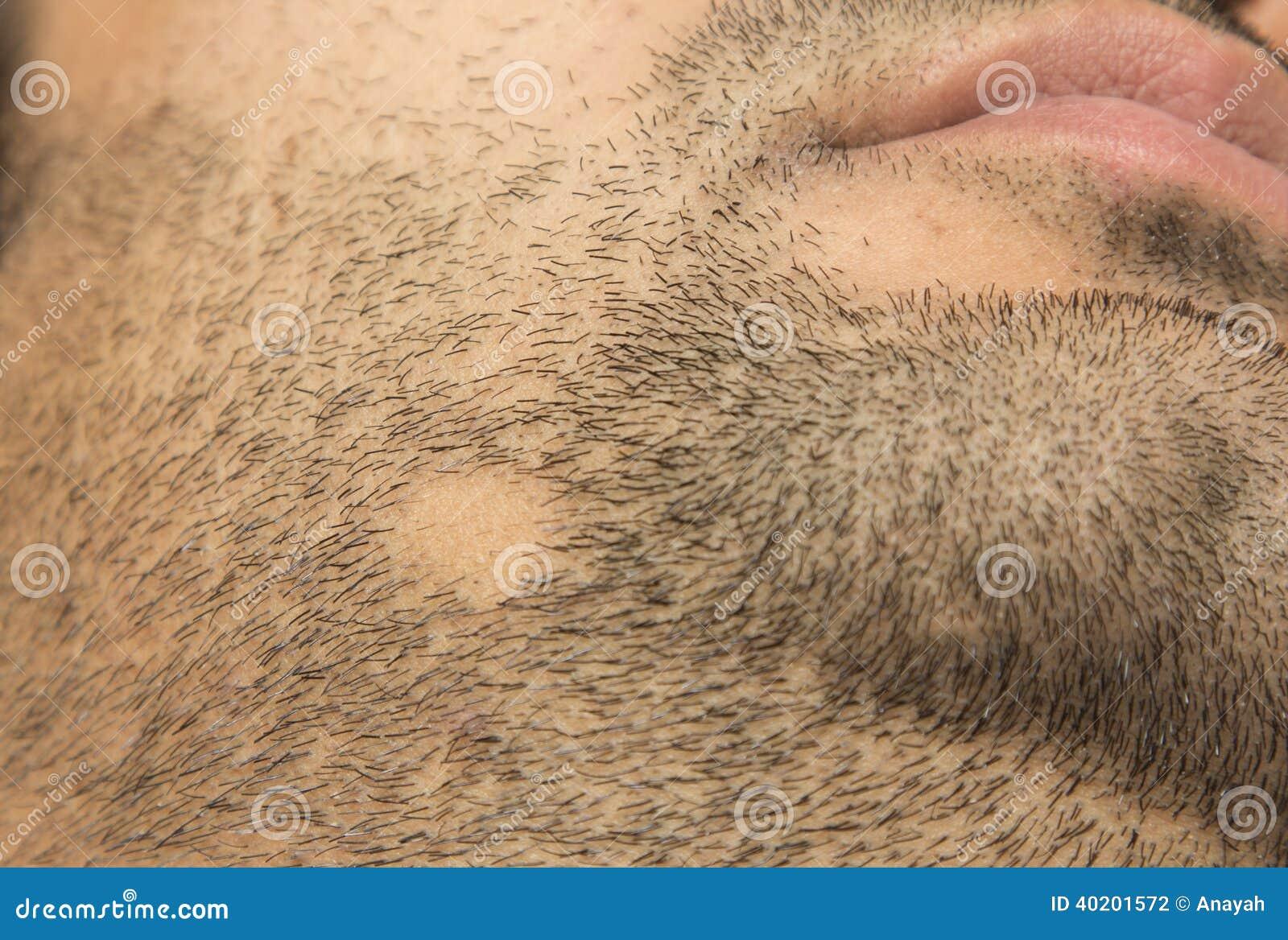 alopecia areata skägg