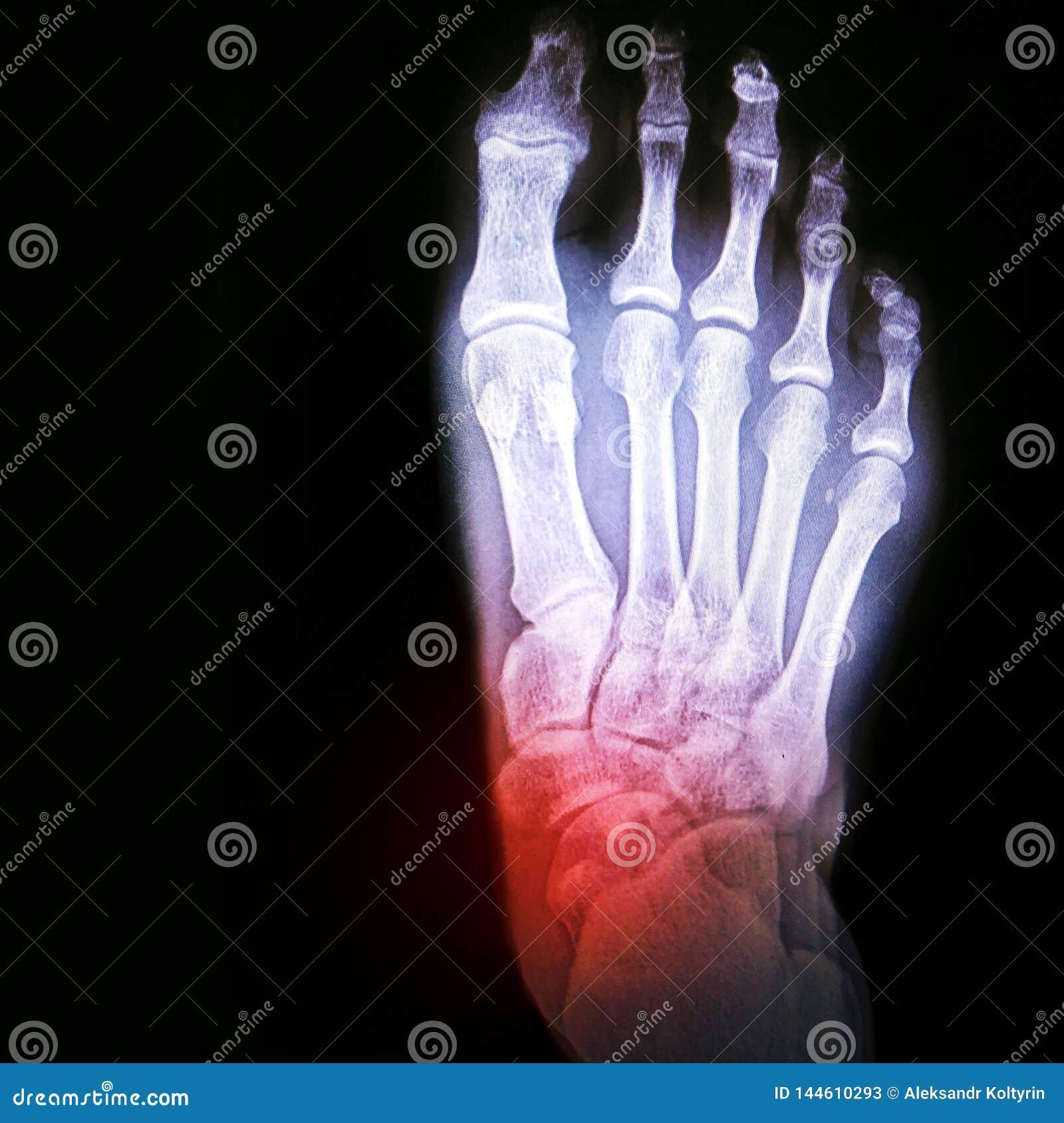 Förskjutning av ankeln eller artrit av skarven Röntgenstråle av foten med beteckningen av den öm fläcken