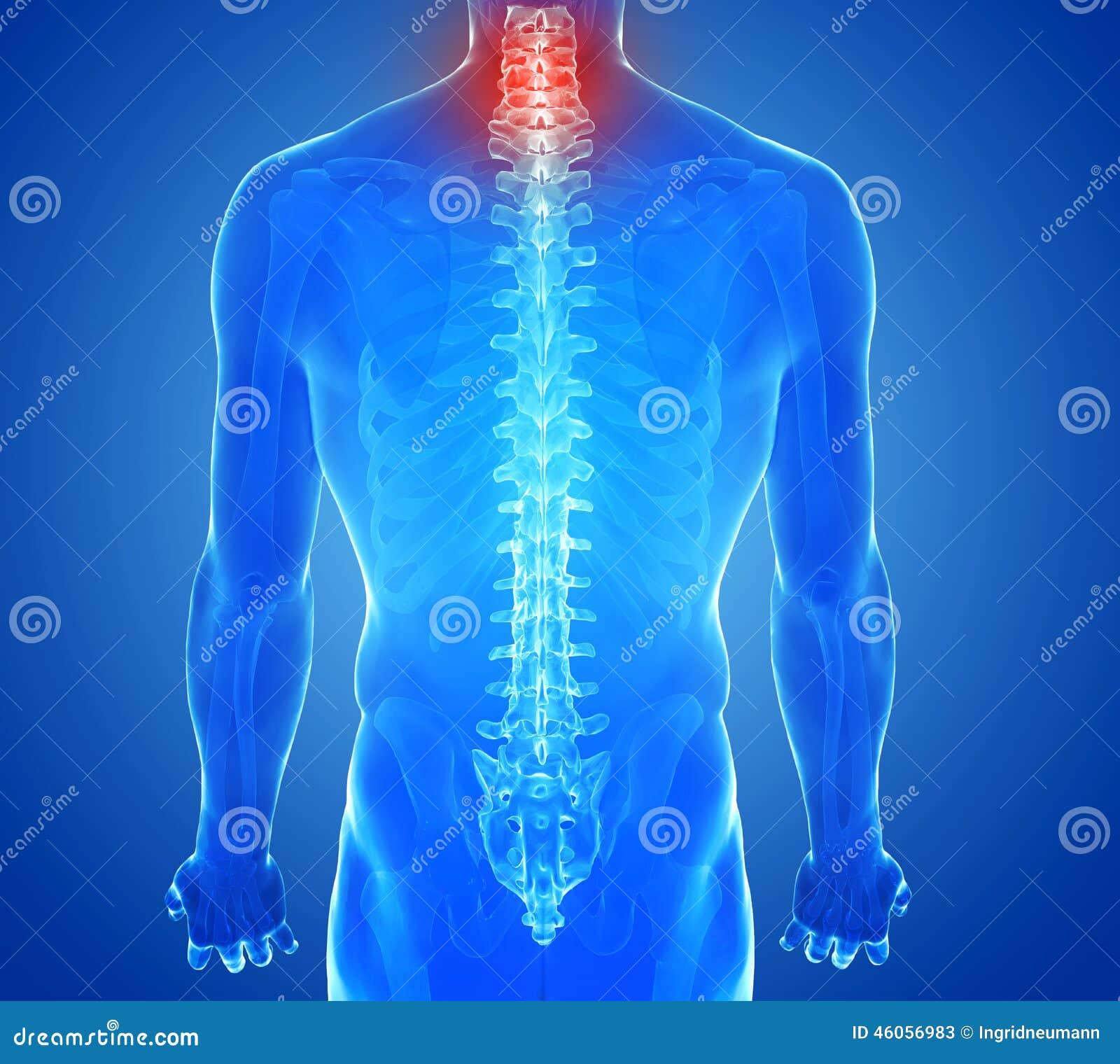 Artrosi degenerativa della colonna vertebrale