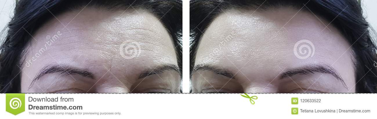 Face elderly woman forehead wrinkles before and after cosmetic procedures collagen