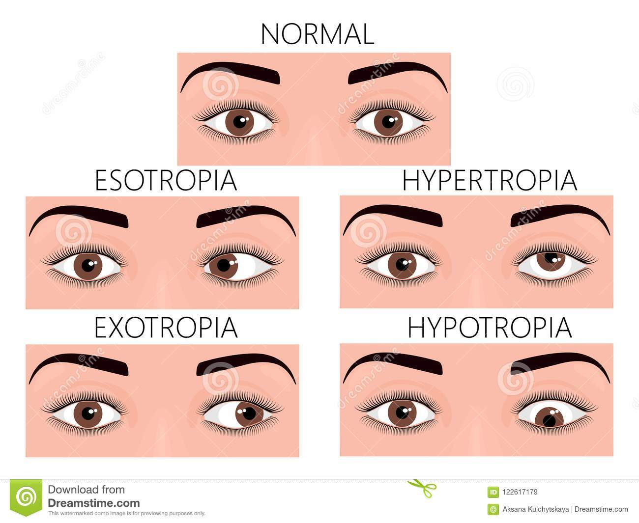 Forum on this topic: Strabismus (Crossed Eyes), strabismus-crossed-eyes/