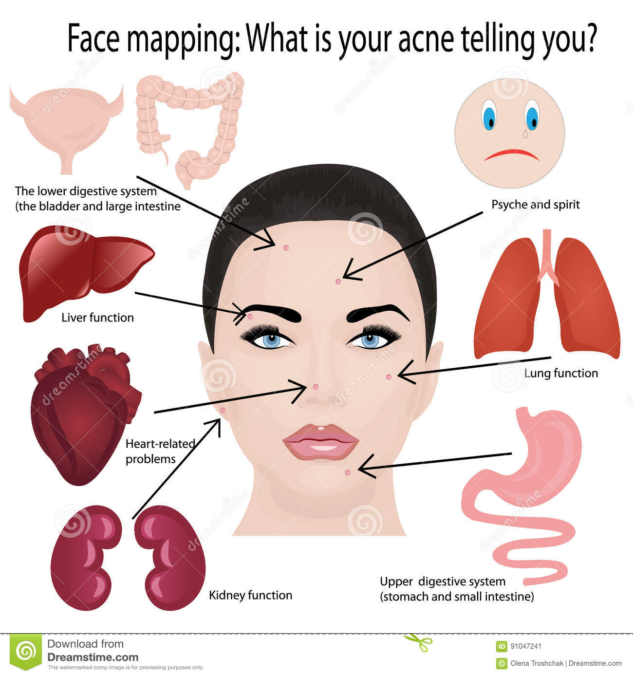 Acne Cartoons  Illustrations  U0026 Vector Stock Images