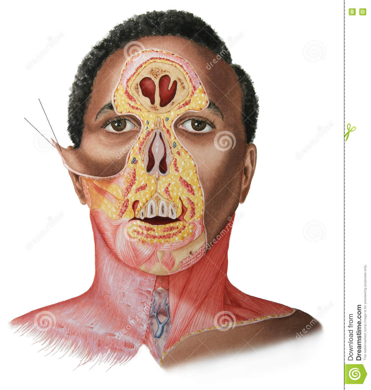 Face & Neck Dissection - Male Stock Illustration - Illustration of ...