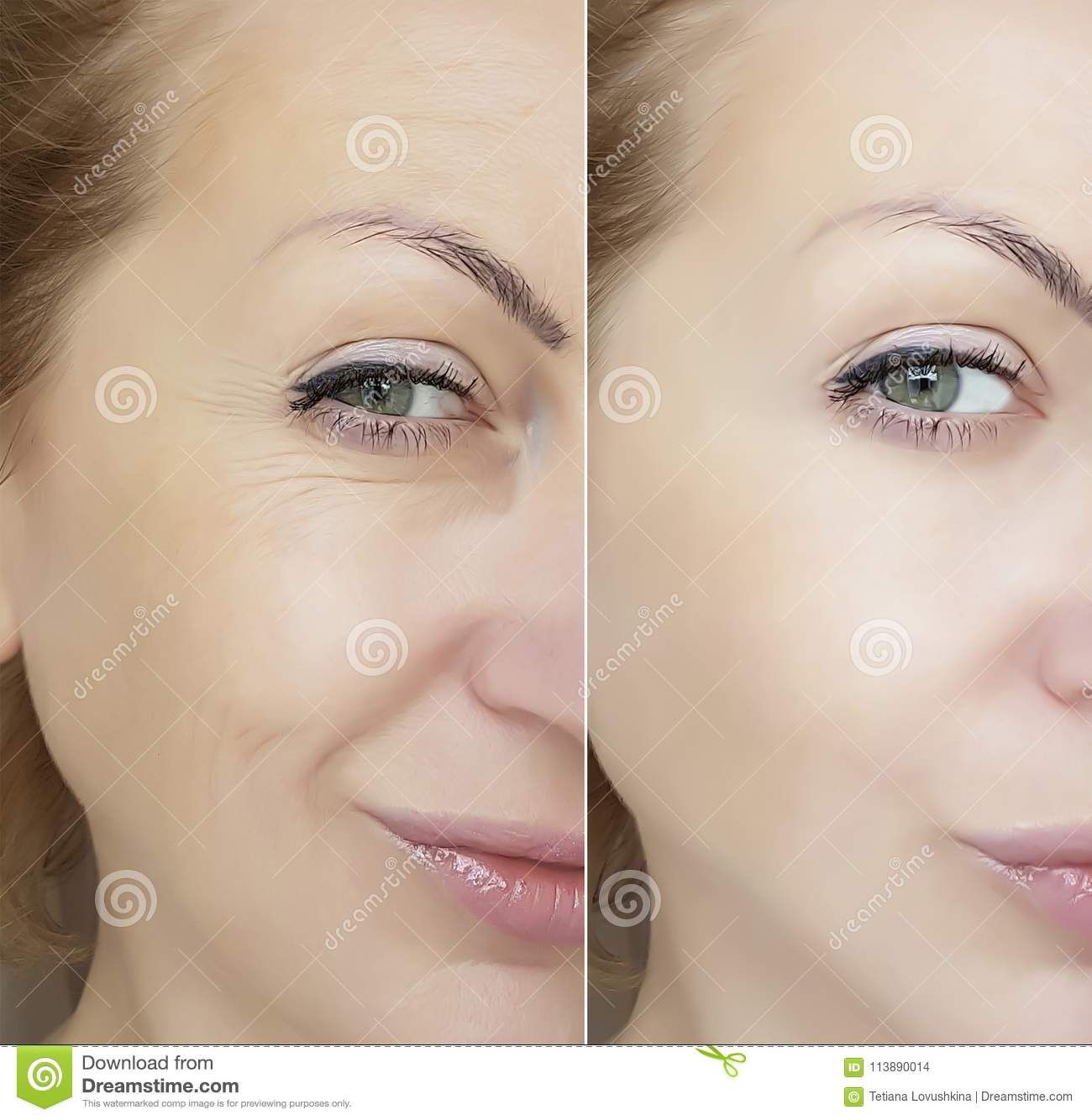 Face woman wrinkles eyes contrast regeneration before and after