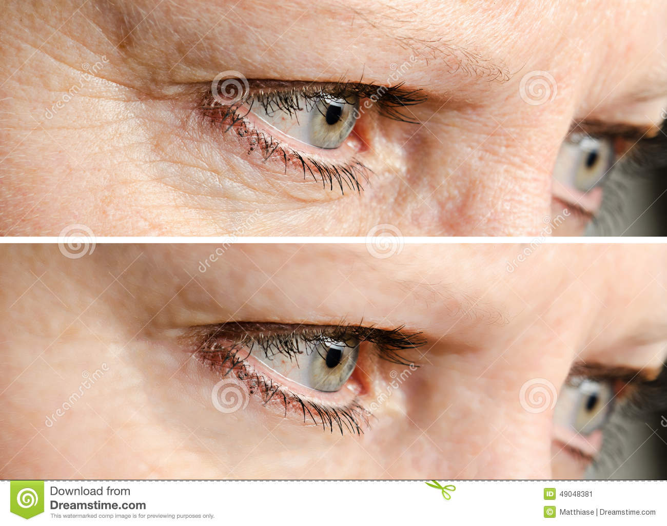 how to clear wrinkles on face