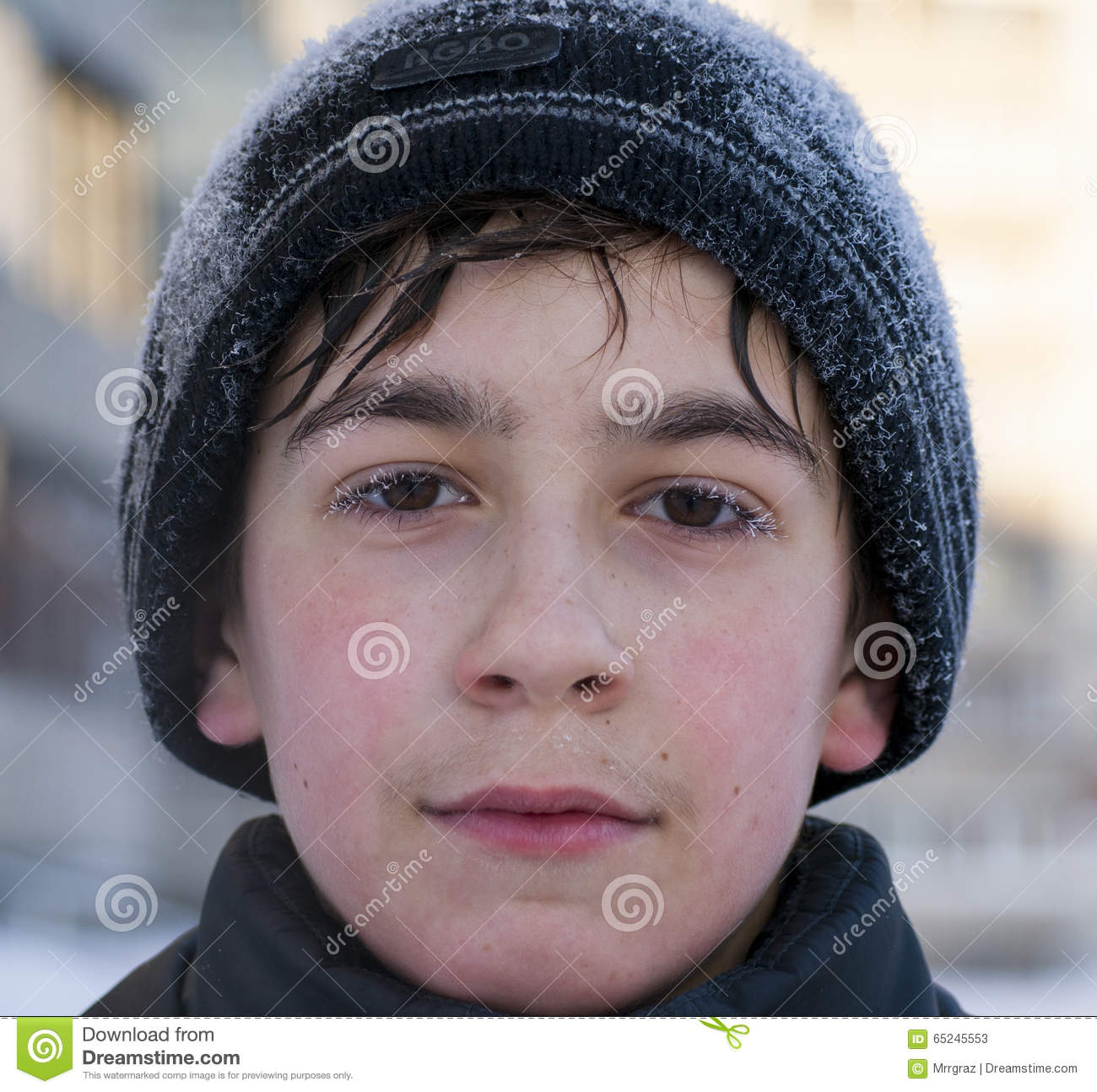 Face Of Young Caucasian Boy In Winter Walking Cold Weather Siberian