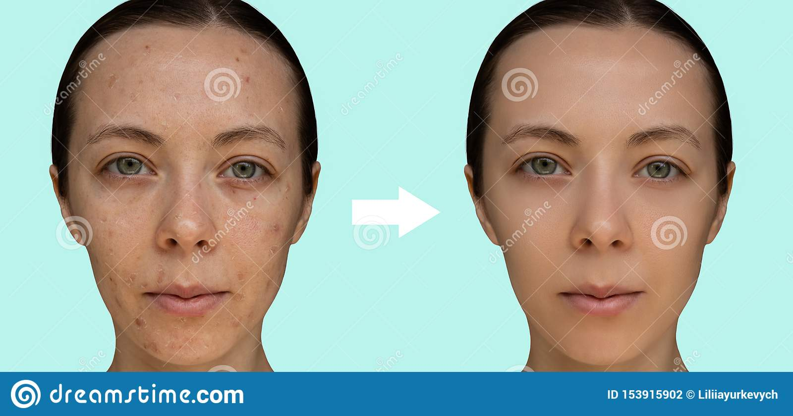 Face of a young girl after a cosmetic procedure of chemical peeling close-up.
