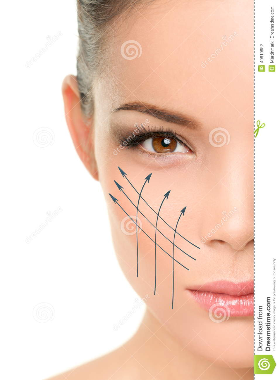 Facelift Anti Aging Treatment On Woman Face Skin Stock Photo