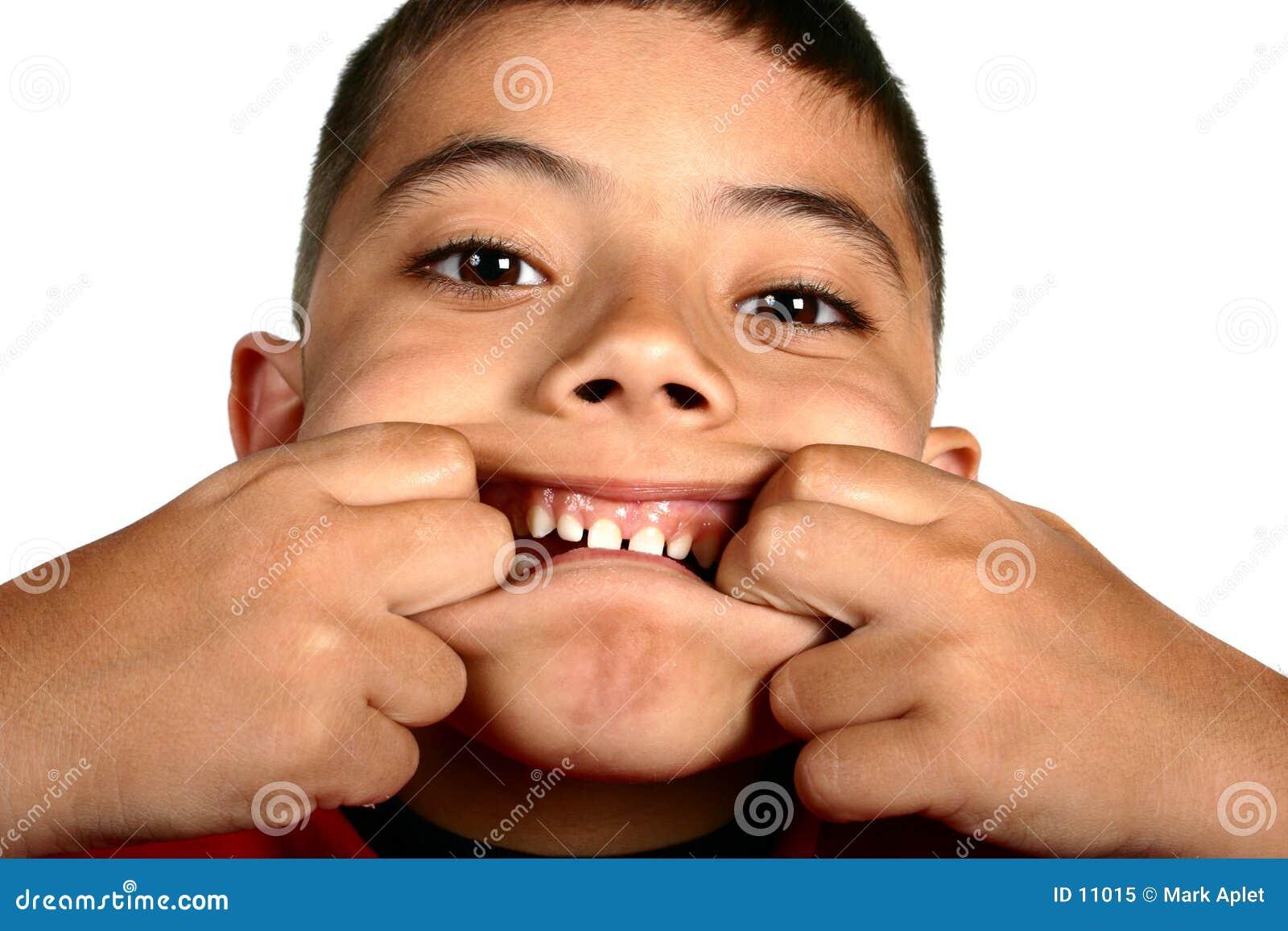Facial expression boy