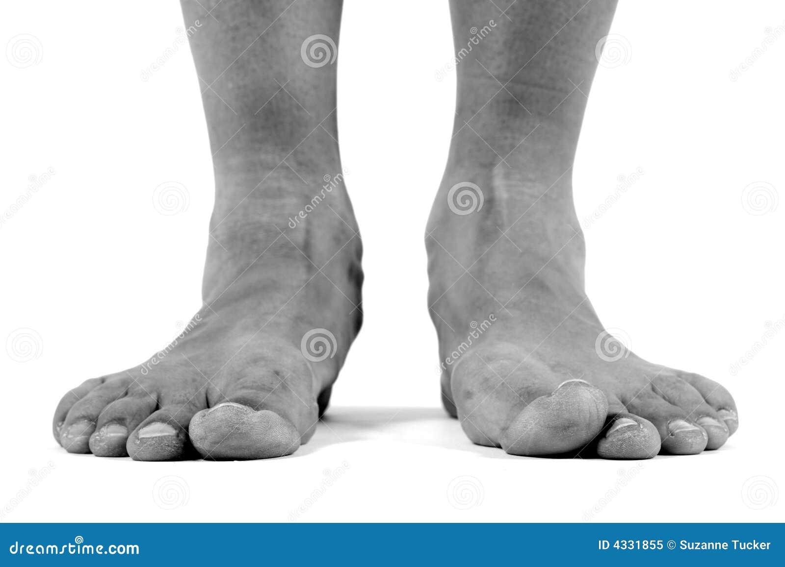 doctor scholls foot machine