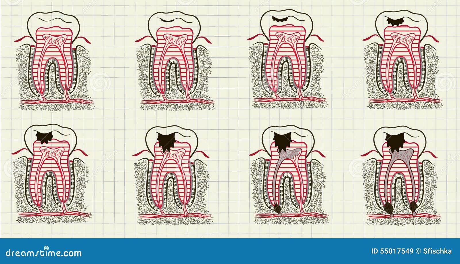Falscher Zahn vektor abbildung. Illustration von gummi - 55017549