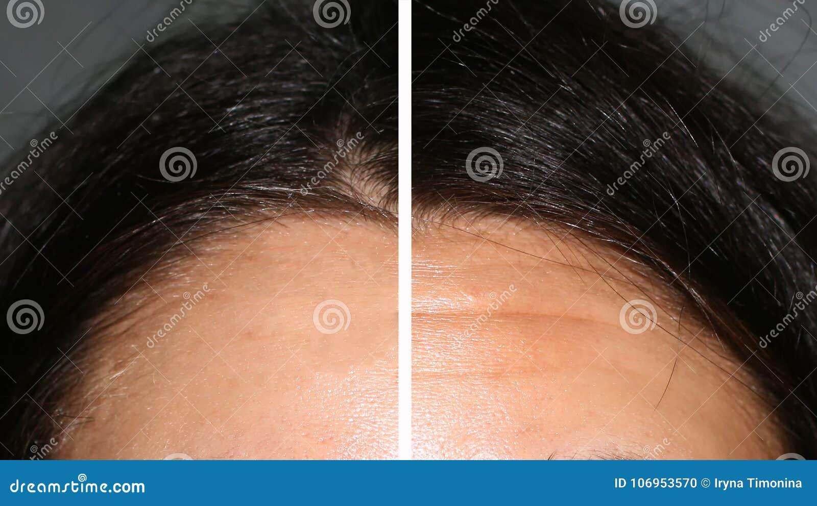 ader stirn