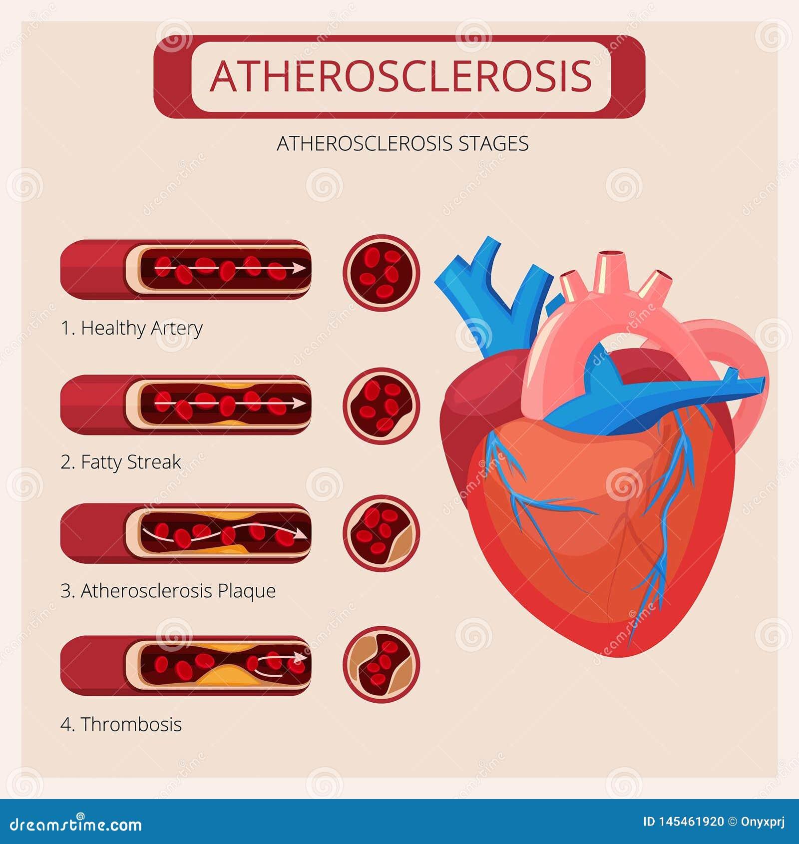 Fases da aterosclerose Infographics m?dico do vetor do sistema circulat?rio do sangue do ataque do thrombus dos cursos do cora?