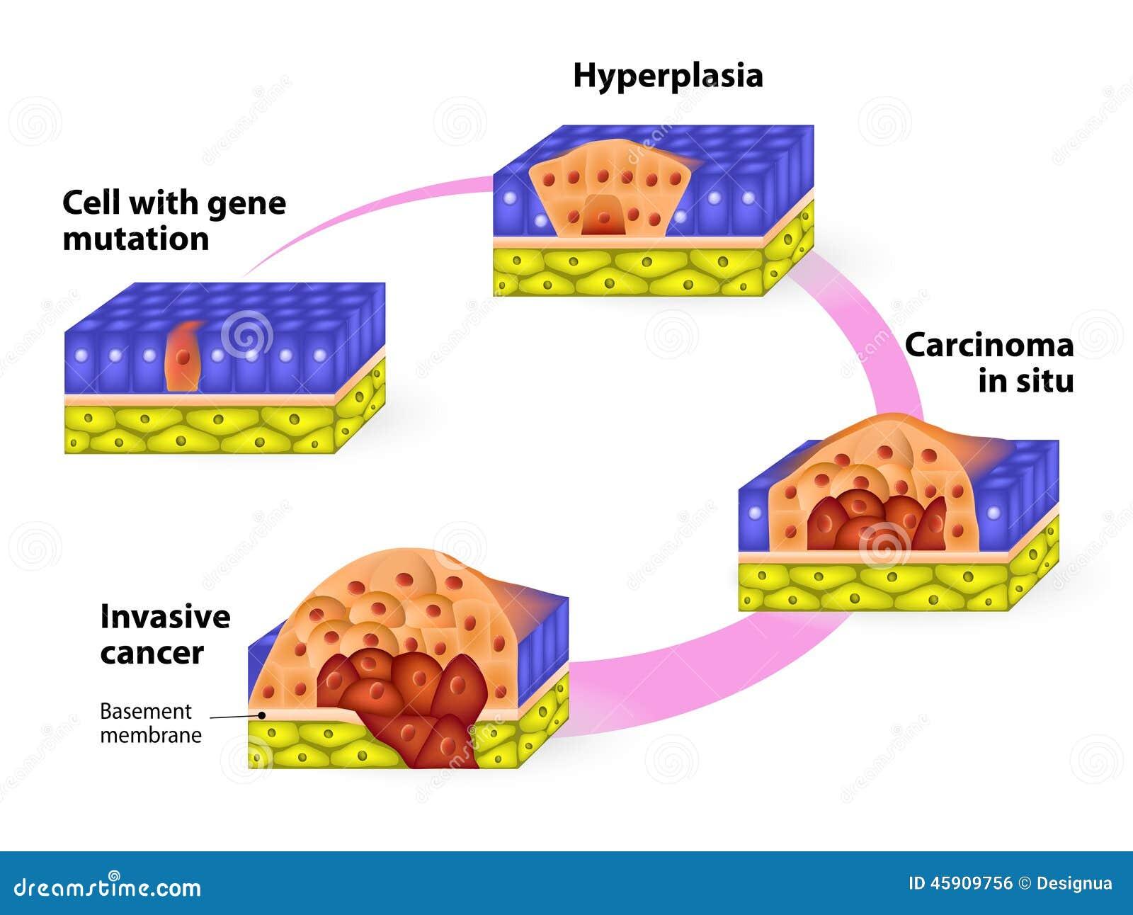 Fases desenvolventes de câncer