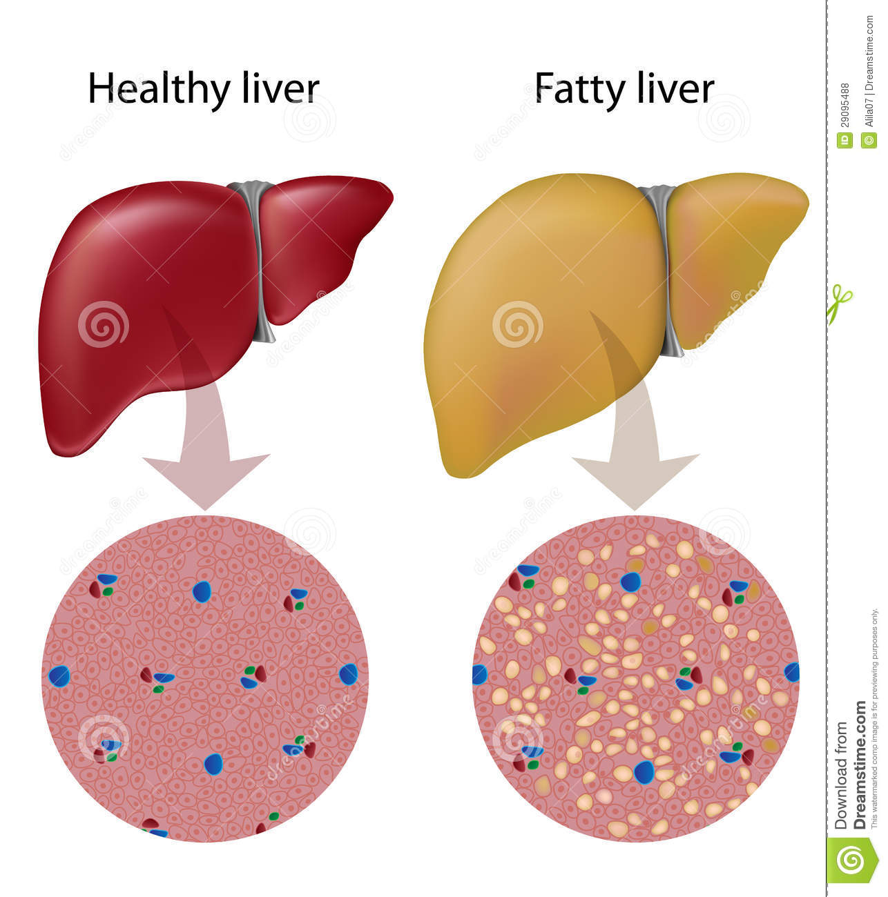 Image result for royalty free images of fatty liver