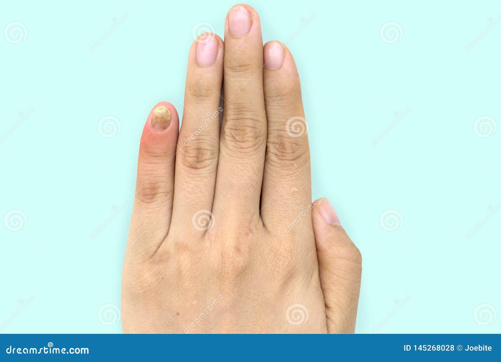Feche acima da infec??o do fungo do prego no dedo pequeno Sofrimento humano da m?o da infec??o do fungo Onychomycosis com prego f