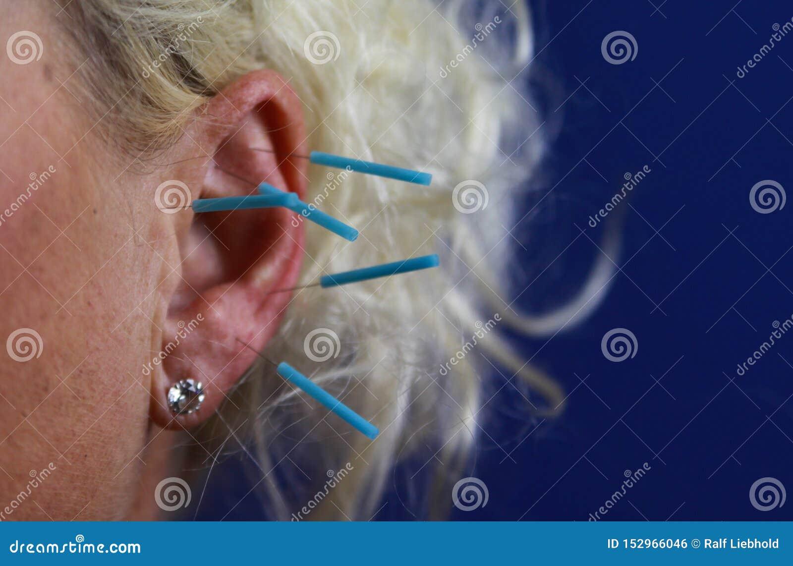Feche acima da orelha fêmea humana com agulhas azuis: Acupuntura da orelha como um formulário da medicina chinesa alternativa