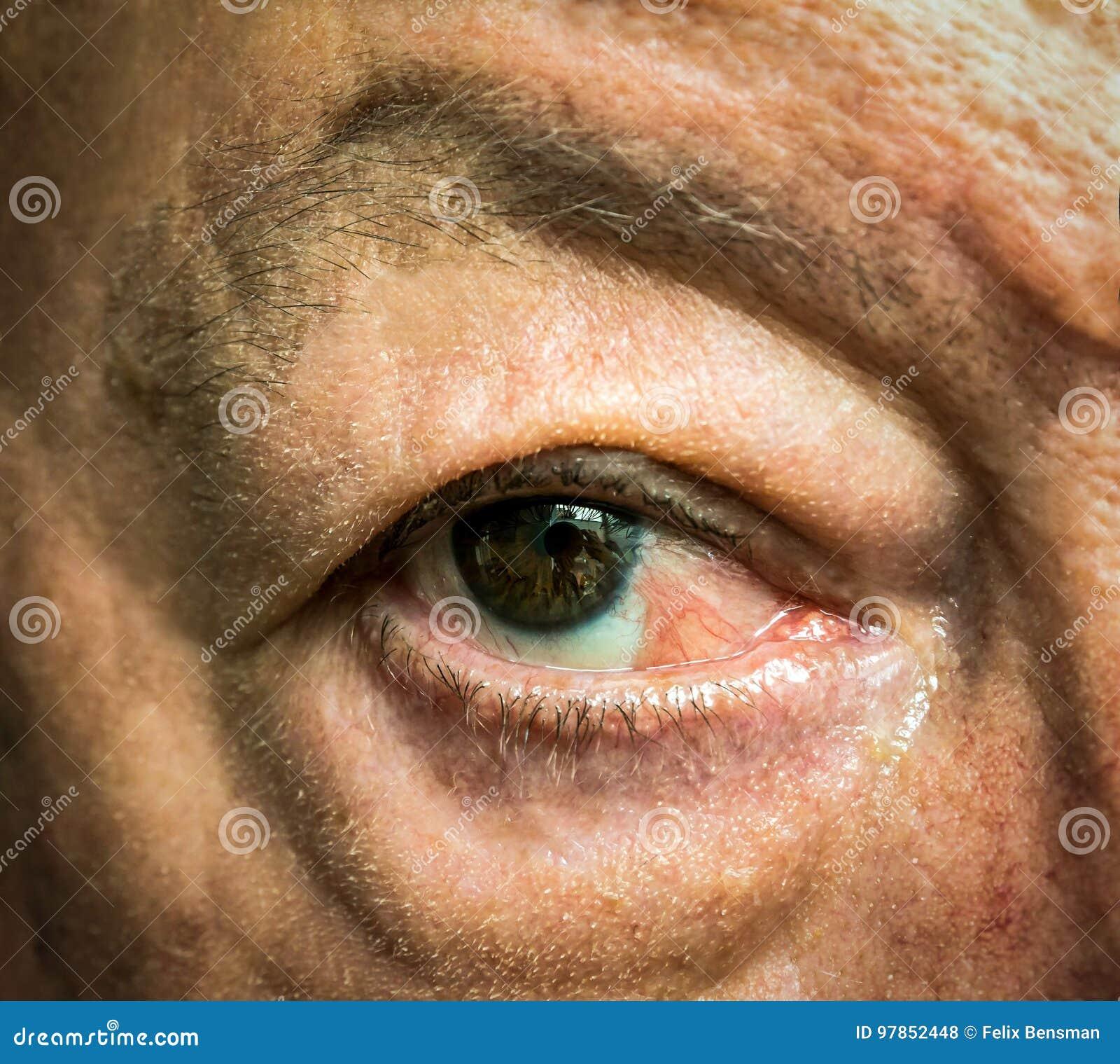 Feche acima do olho com pseudopterygium