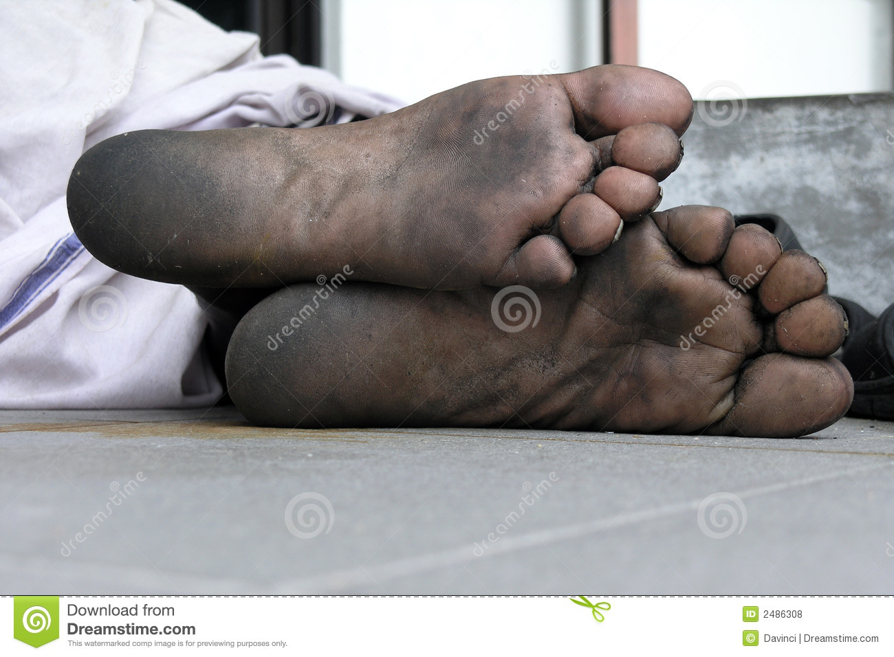 Ugly Feet Stock Images - Download 545 Royalty Free Photos