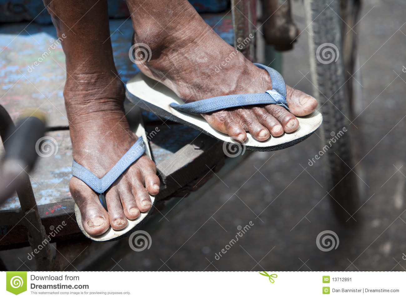 Feet in Flip-Flops On a Delivery Cart