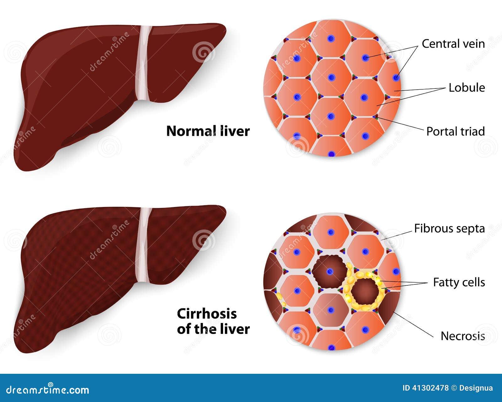 wat is gezond voor de lever
