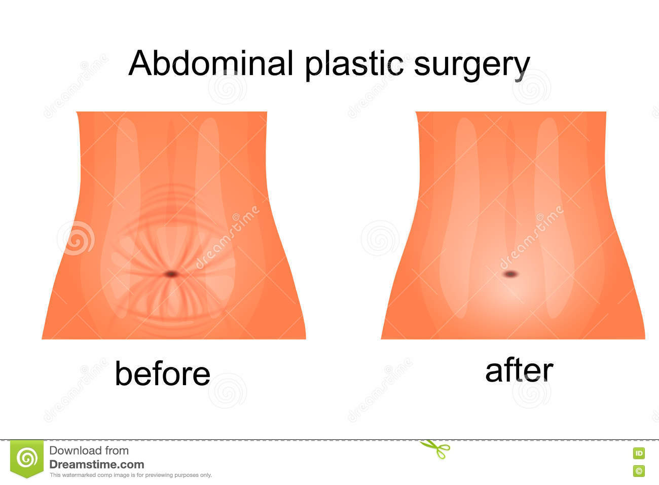 Female Abdomen Before And After Abdominoplasty Stock Vector