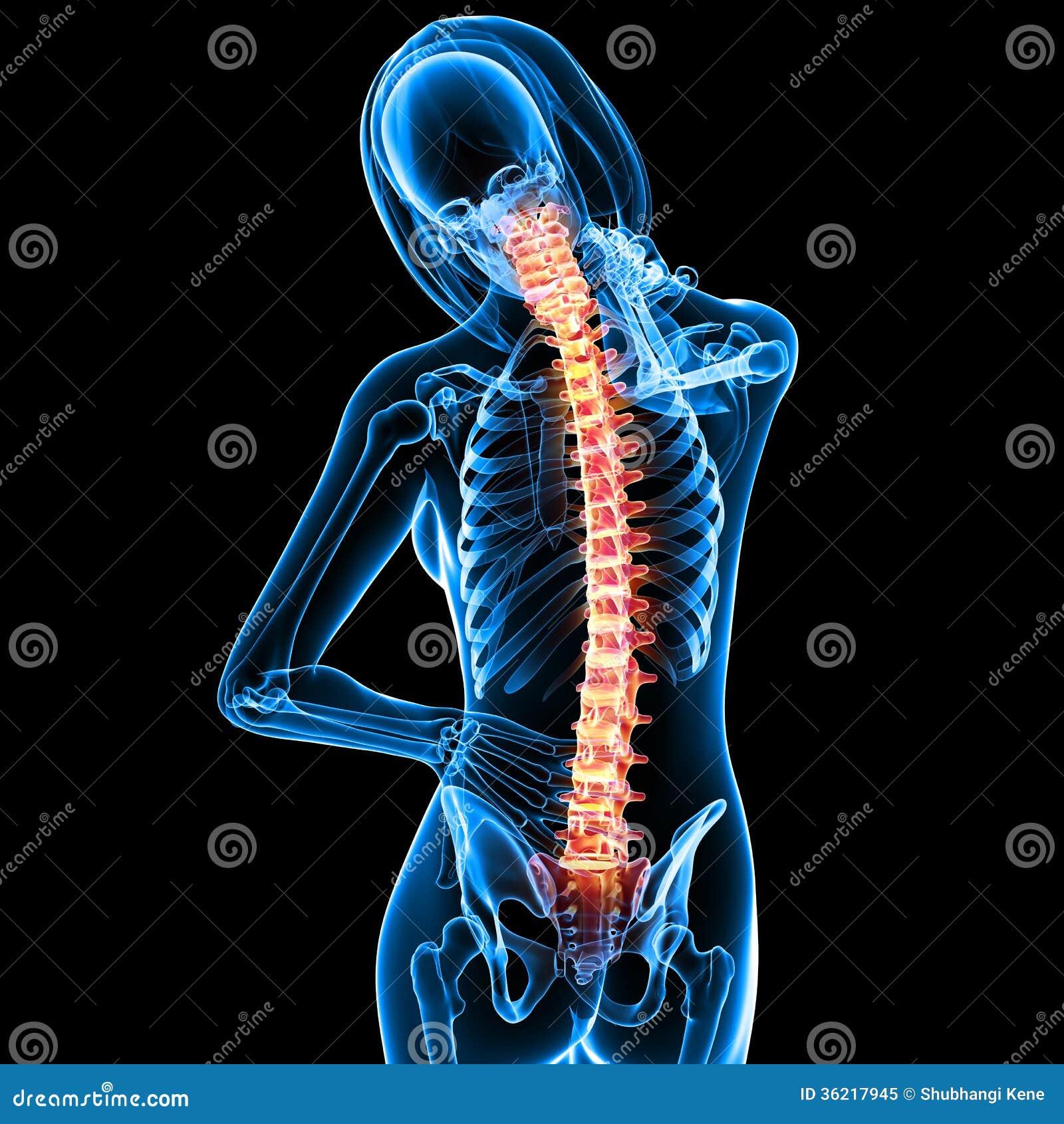 female back pain royalty free stock photo image 36217945