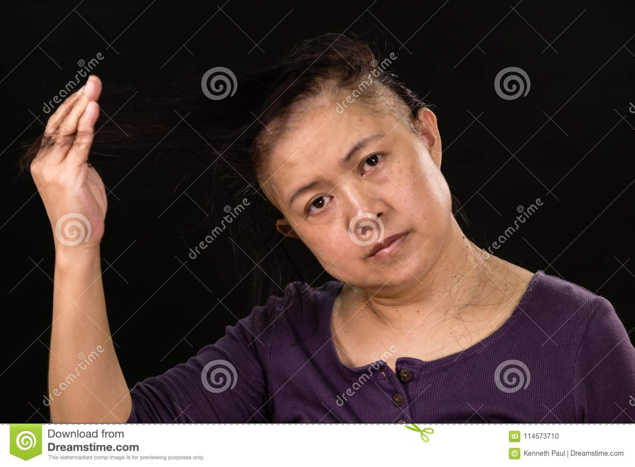 Female Cancer Patient With Hair Falling Out Stock Photo ...