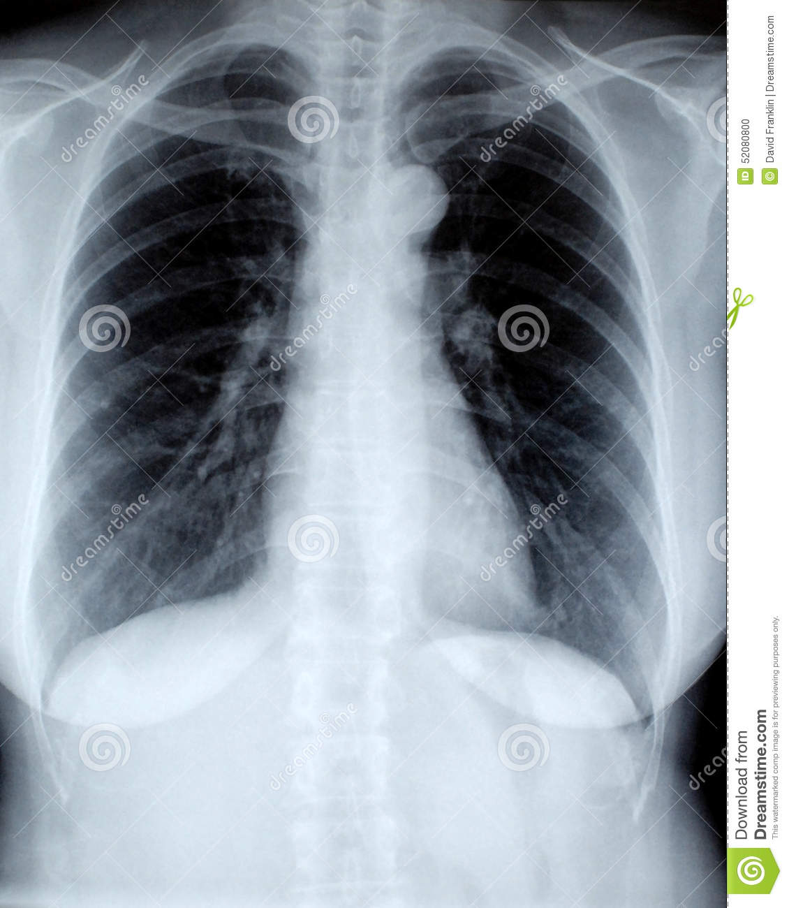 Female chest xray, front view