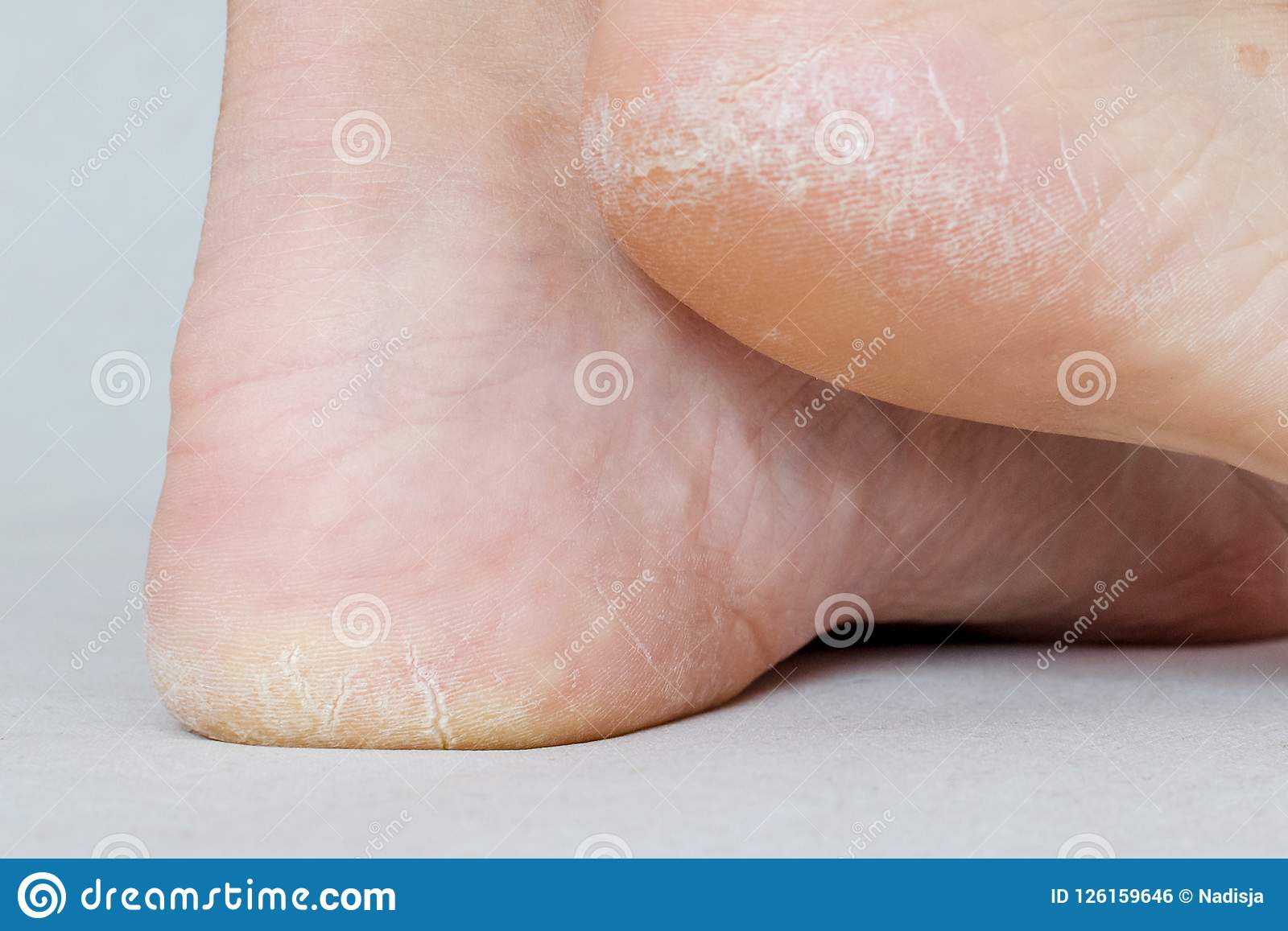 Female feet with dry heels, cracked skin